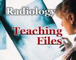 Radiology Teaching Files | MRI, Ultrasound Technologist Training