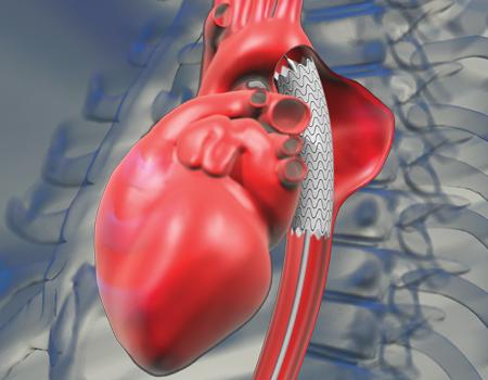 Как влияет варикоз на репродуктивную вункцию у мужчин