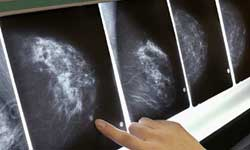 mammography news